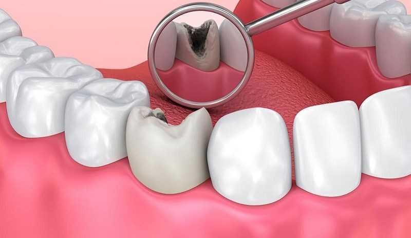 Đường ăn kiêng làm giảm nguy cơ sâu răng