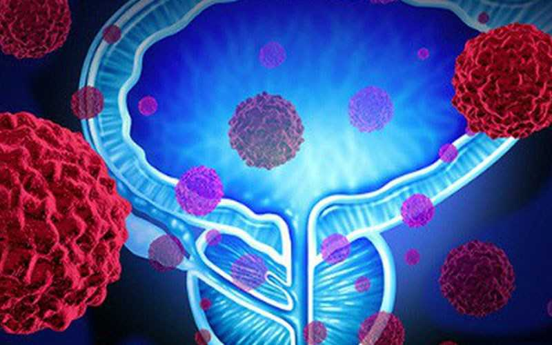 Tăng nguy cơ ung thư tuyến tiền liệt
