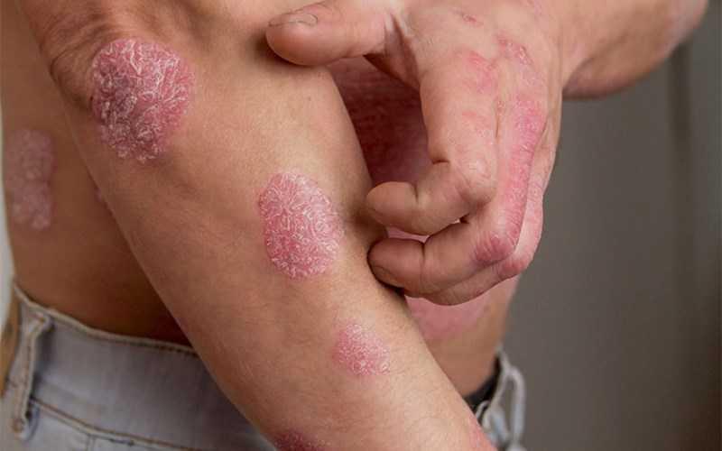 Ớt cayenne giúp cải thiện bệnh vẩy nến