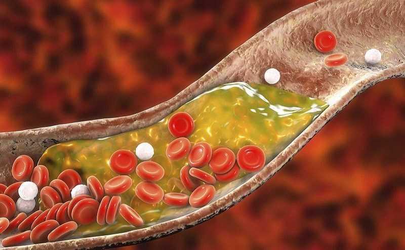 Đậu tằm giúp giảm cholesterol