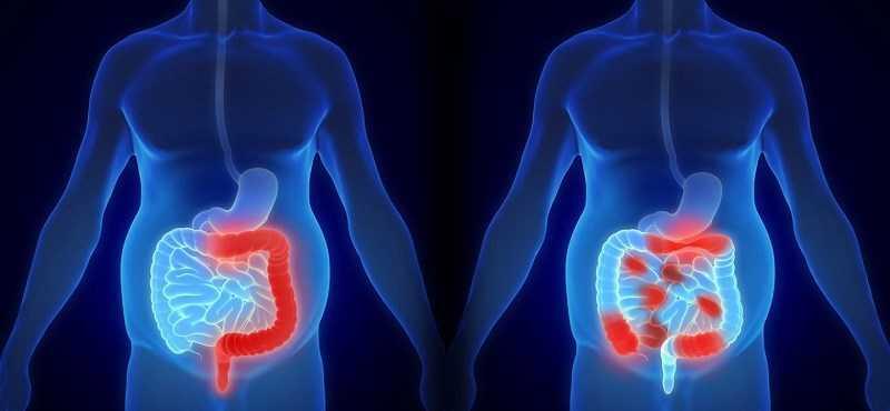 Đậu thận ngăn ngừa ung thư ruột kết