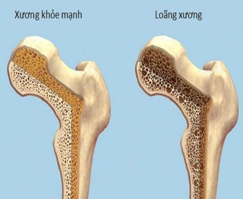 Sâm đất ngăn ngừa và hỗ trợ điều trị loãng xương