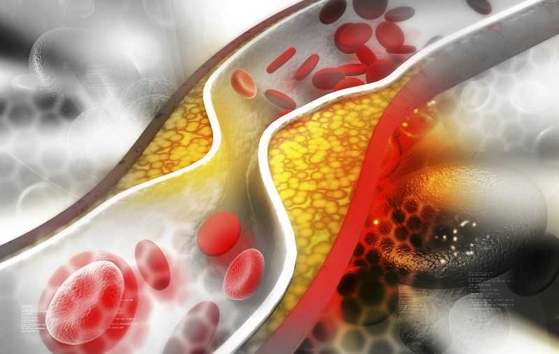 Giấm balsamic giúp giảm cholesterol