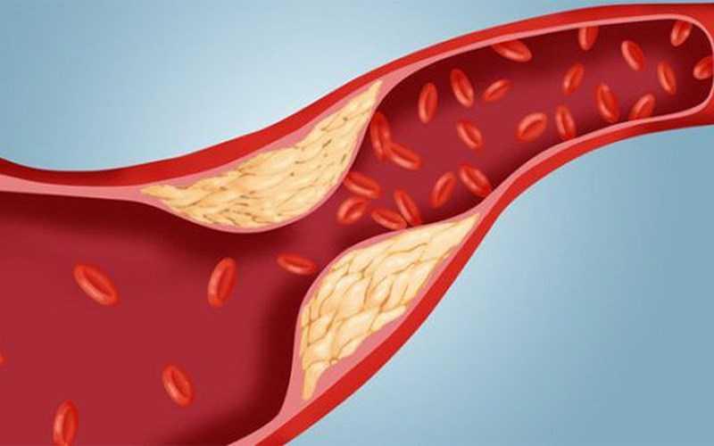 điều chỉnh cholesterol