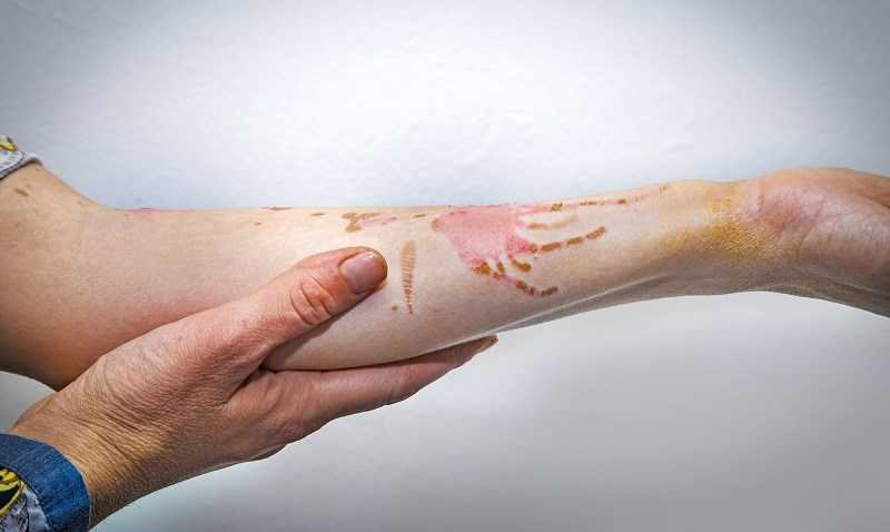 Dầu mè giúp chữa lành vết thương và vết bỏng