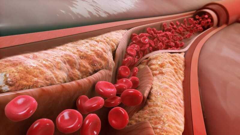 Giảm cholesterol và béo phì