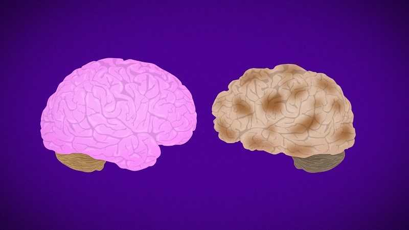 Dầu ô liu hỗ trợ ngăn ngừa bệnh Alzheimer