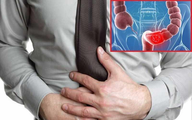 Nước giúp giảm các triệu chứng viêm đại tràng