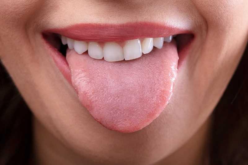 Chất gây dị ứng (rát lưỡi)
